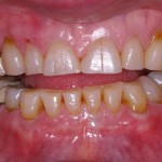 Occlusal Disease-cosmetic dentistry