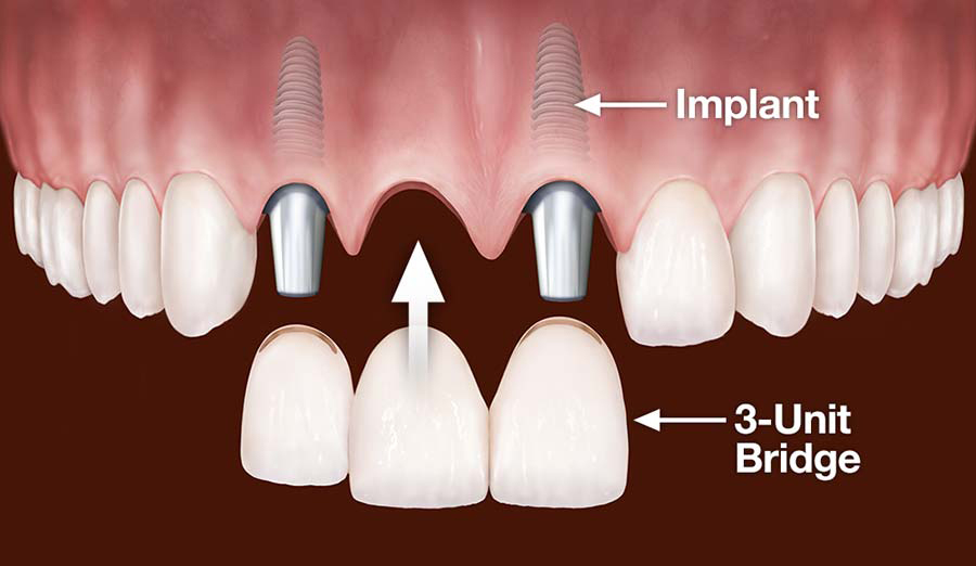 implants-replace-multiple-teeth